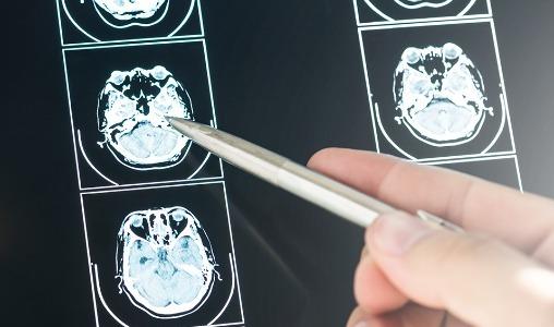 Tumores do sistema nervoso
